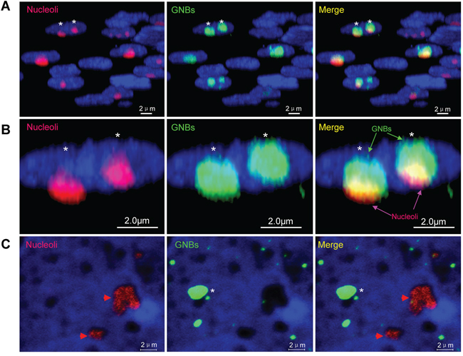 Giant nuclear bodies (GNBs) are different from nucleoli in cancer cells