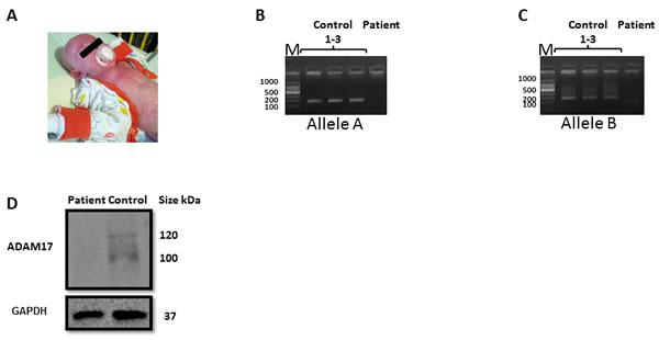 Validation of the ADAM17 deficiency