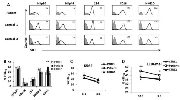 NK cell characterization of ADAM17-deficient patient