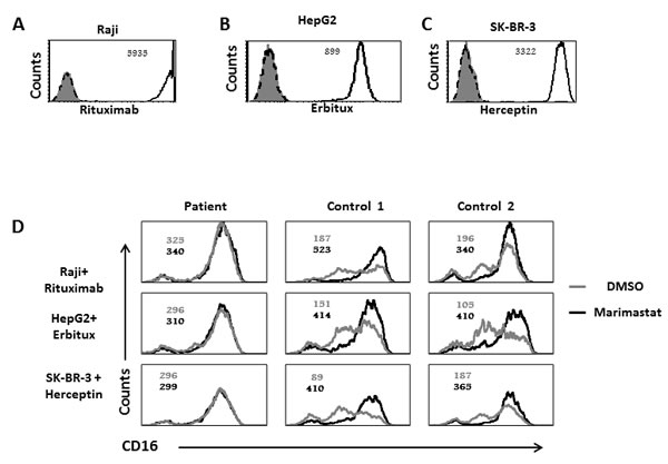Reduced CD16 cleavage from the patients NK cells following CD16 stimulation by mAb.