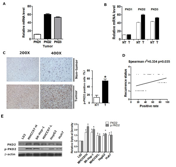 PKD2 is highly expressed in HCC.