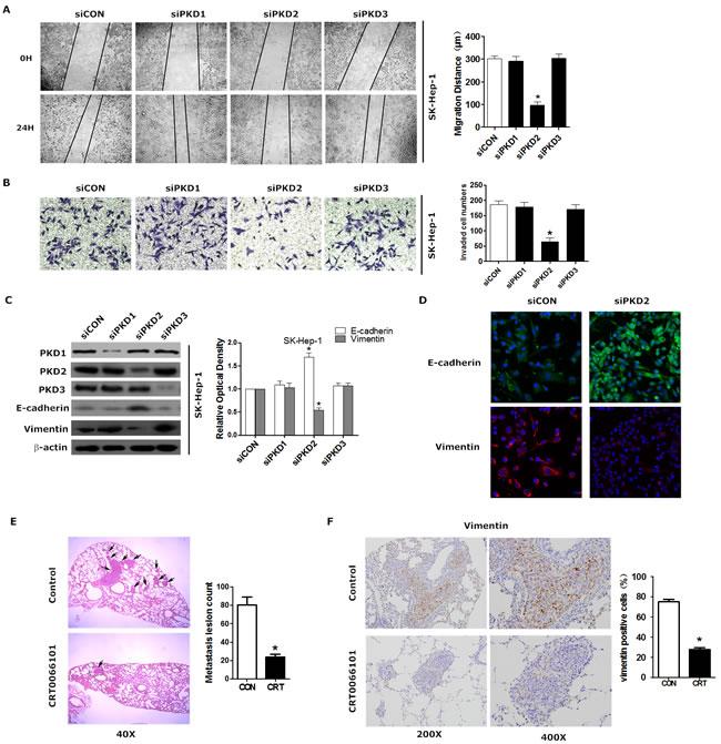 PKD2 contributes to EMT phenotype and invasiveness of HCC.