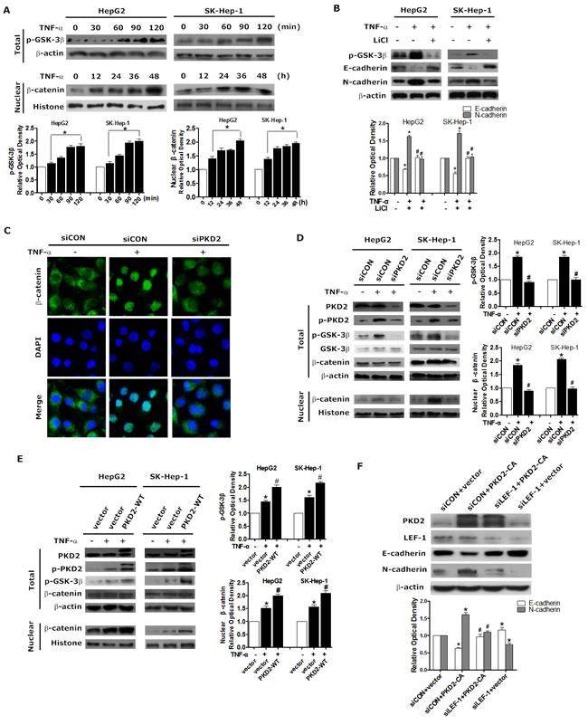 PKD2 regulates GSK-3β/β-catenin pathway in TNF-α-induced EMT.