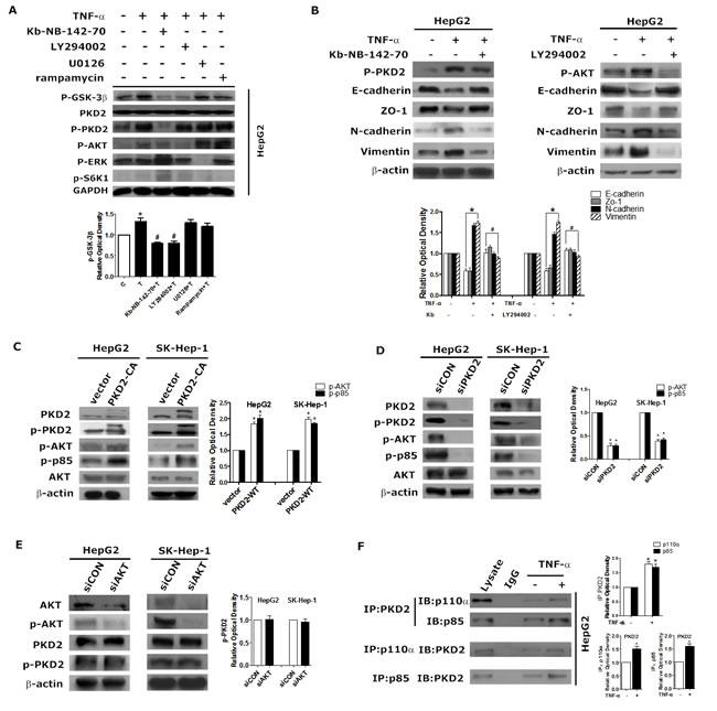 PKD2 regulates the PI3K/AKT pathway in TNF-α-induced EMT.