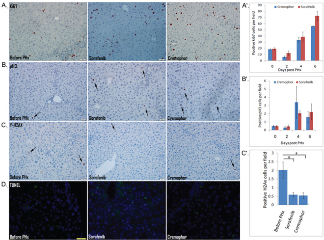 The cellular response of hepatocytes is not directly affected by short-term Sorafenib treatment during PHx