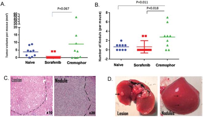 Short-term Sorafenib treatment during PHx reduces tumorigenesis in the Mdr2-KO model.