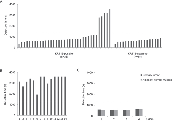 Detection of ANXA8 mRNA in lymph nodes and primary tumors from OSCC patients by RT-LAMP.