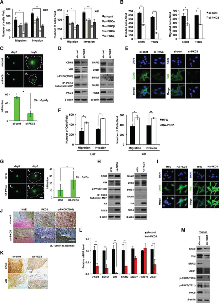 Effect of PKCδ on infiltration of GBM cells through mesenchymal transformation.