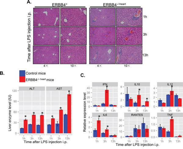 Figure 4. ERBB4 knockout mice exhibited more lymphocytes infiltration in lipopolysaccharides (LPS)-induced acute liver injury.