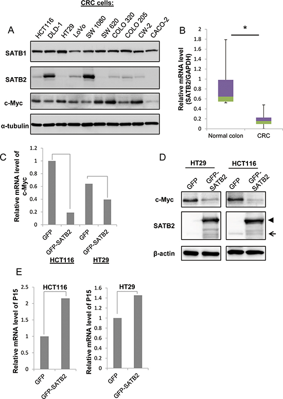 Ectopic expression of SATB2 inhibits c-Myc expression.