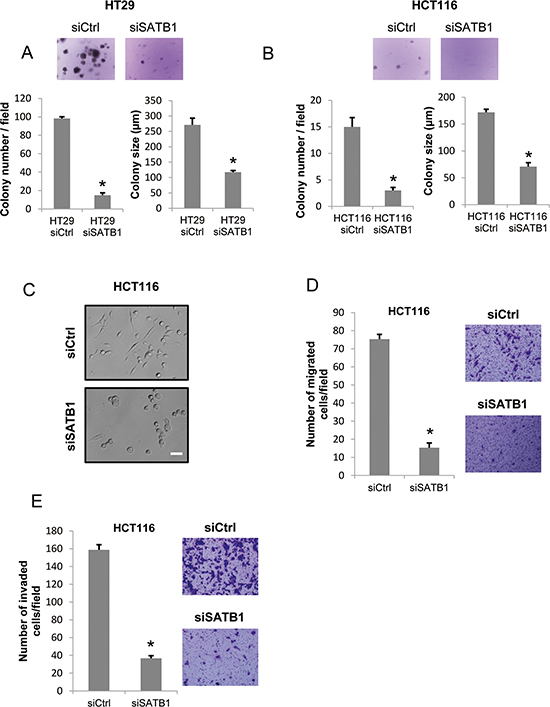 Depletion of SATB1 represses colony formation, cell migration and invasion.