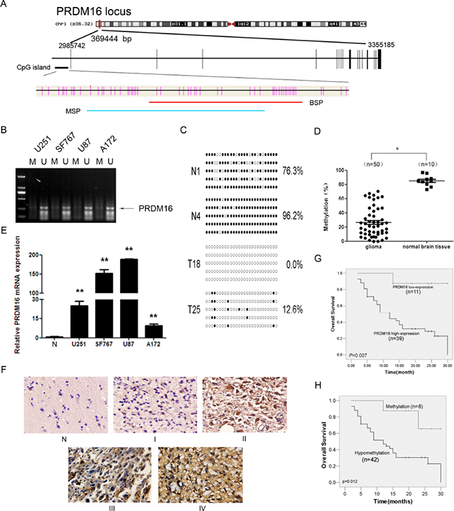 PRDM16 with a hypomethylated promoter is overexpressed and correlated with poor prognosis in astrocytoma patients.