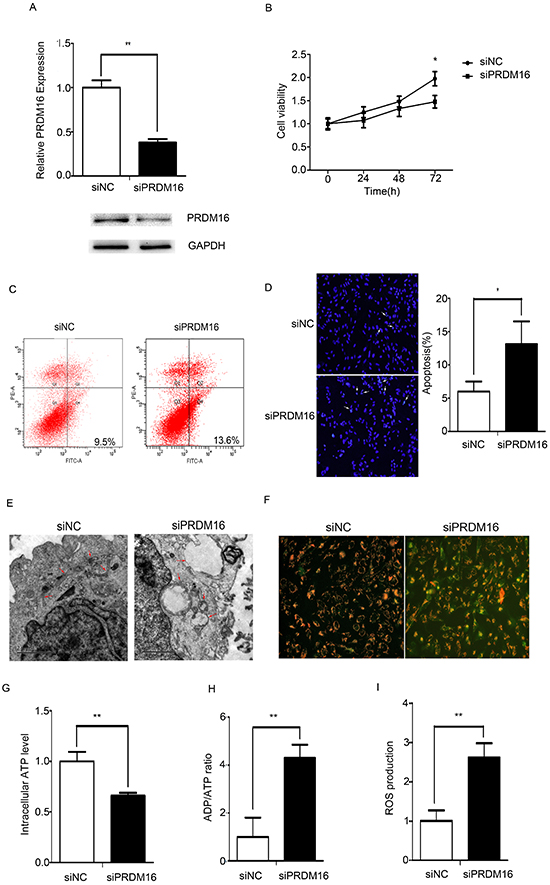 PRDM16 knockdown disrupted mitochondrial function in U251 cells.