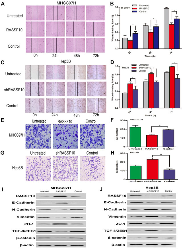 Influence of RASSF10 on HCC cell migration and invasion and EMT.