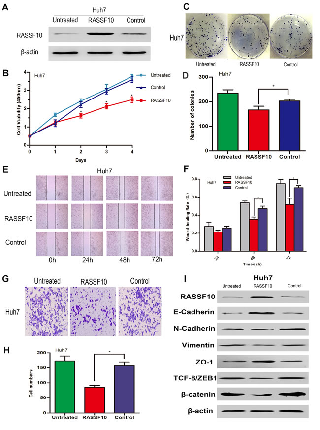 Influence of RASSF10 on Huh7 cell growth, migration, invasion and EMT.