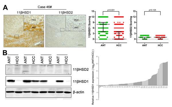 Loss of 11βHSD1 in hepatocellular carcinoma.