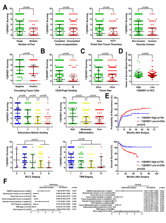Reduced 11βHSD1 expression predicts aggressive clinicopathological characteristics and poor prognosis in HCC patients.