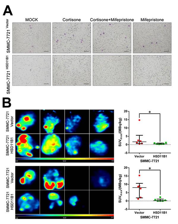 Impaired glycolysis confers 11βHSD1-repressed metastasis.