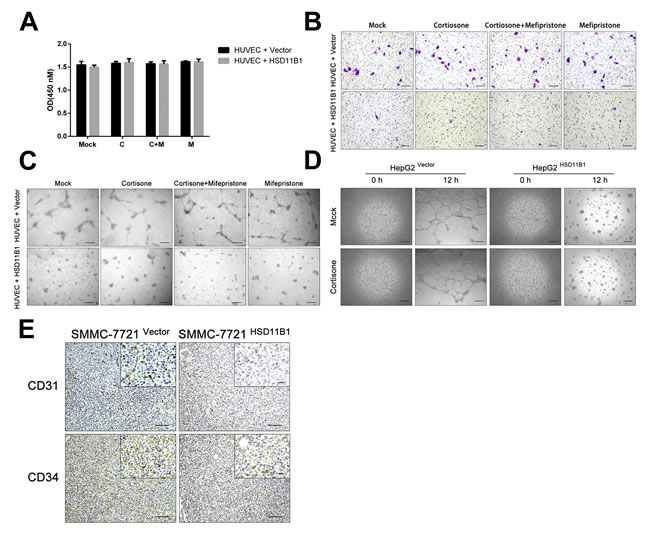 11βHSD1 attenuates hepatoma angiogenesis and vasculogenic mimicry.