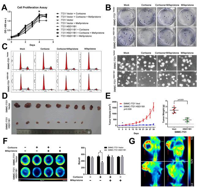 11βHSD1 represses proliferation and growth of HCC cells.