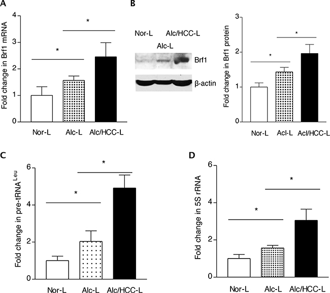 Expression of Brf1 and Pol III genes in HCC cases with alcohol consumption.