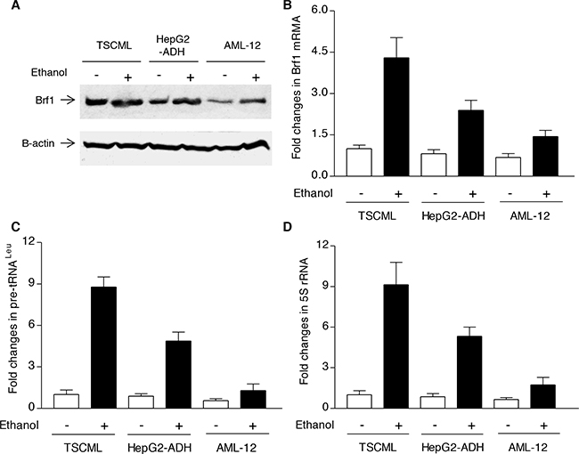 Brf1 and Pol III gene expression in non-tumor and tumor liver cell lines.
