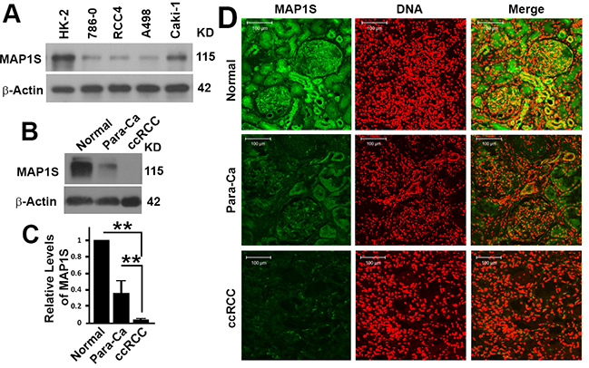 The levels of MAP1S protein in human renal cancer cell lines and cancer tissues.