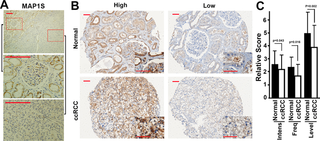 The levels of MAP1S in fixed tissues from ccRCC patients.