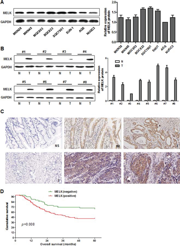 MELK expression in cultured GC cells and primary GC tissues, and survival in patients with GC.