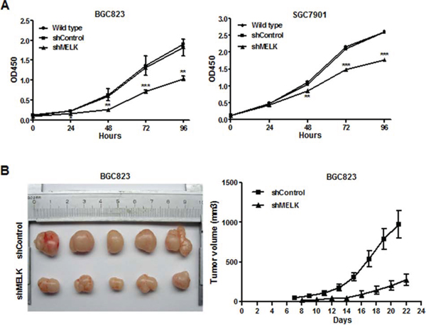 Effects of MELK knockdown on GC cell growth in vitro and in vivo.