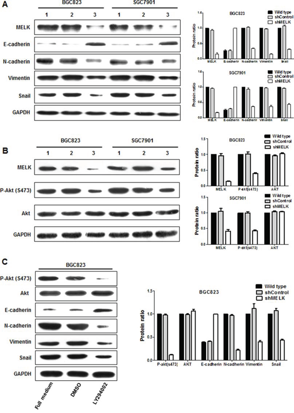 MELK regulates the expression of EMT-associated proteins and AKT activity.