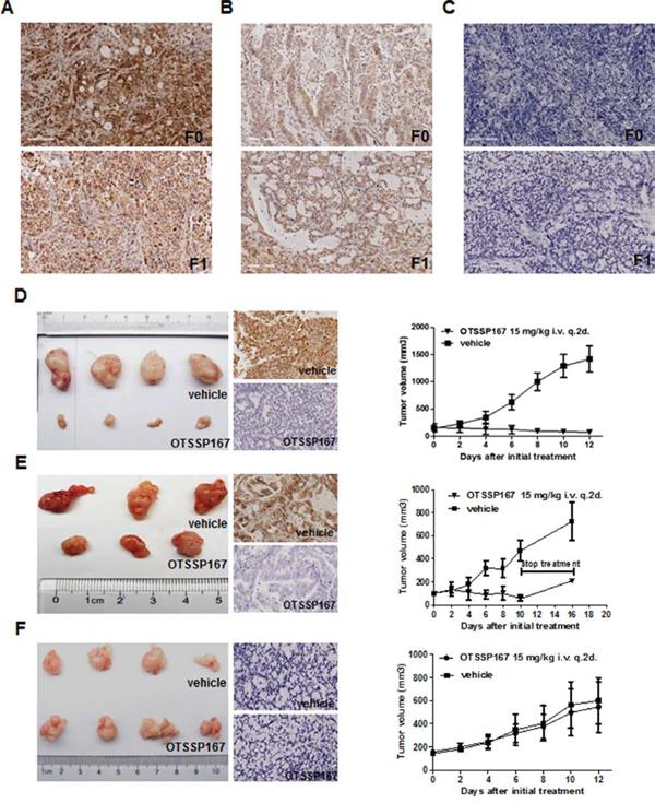 OTSSP167 reduces growth of MELK-positive GC-PDX TumorGraft.