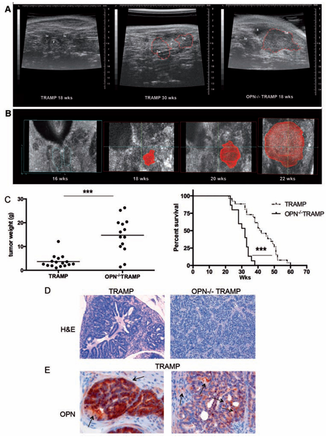 OPN-/- TRAMP mice develop anaplastic tumors with increased frequency.