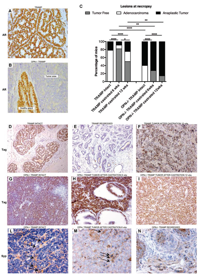 Anaplastic tumors developing in OPN-/- TRAMP mice are androgen independent and express NE markers.