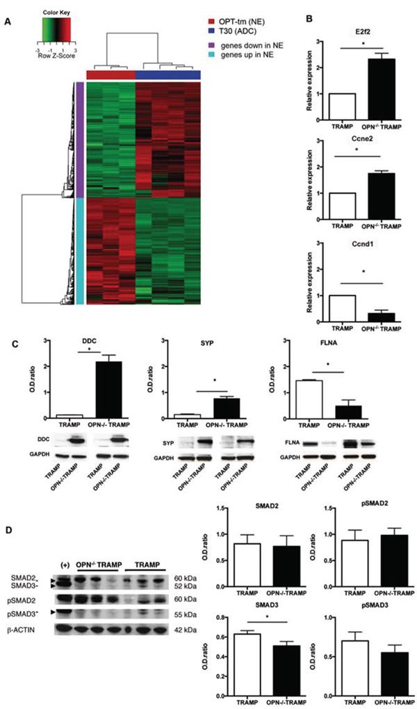 Gene expression profile confirms NE phenotype of OPN-/-TRAMP tumors.