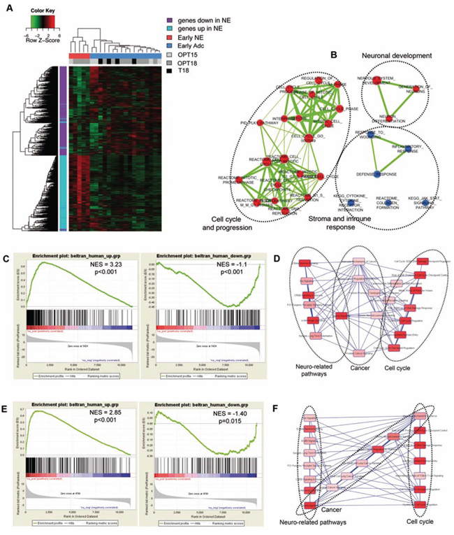 Early NE signature from OPN-/-TRAMP mice correlates with human NE tumors.