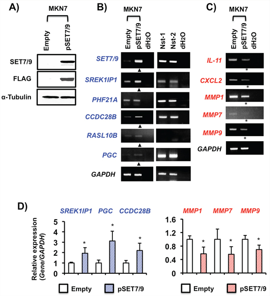 Effects of SET7/9 overexpression in GC cells.