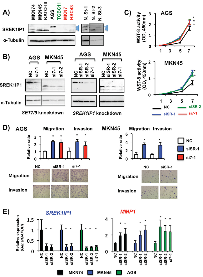 Effects of SREK1IP1 siRNA transfection in GC cells.