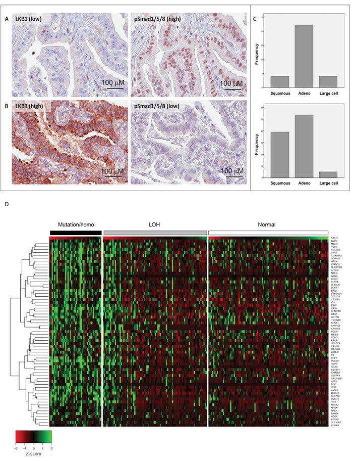 Inverse expression of LKB1 and BMP-activated Smad1 in human lung adenocarcinomas.