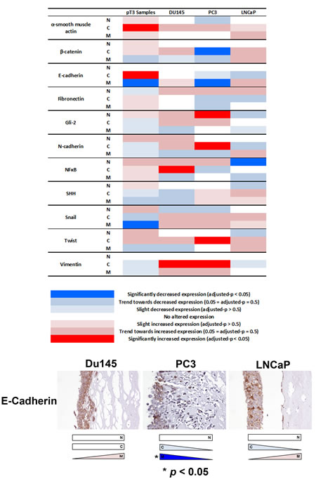 Analysis of EMT-related protein expression in an