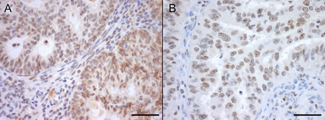 Nuclear SIRT1 (A) and SIRT7 (B) protein immunoexpression in endometrial carcinomas, with marked nucleolar staining in SIRT7 (Bar = 50 µm).