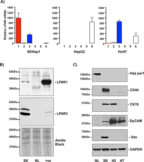 SKHep1 cells express LPAR1 and LPAR3 and mesenchymal/cancer stem cell markers. (A)