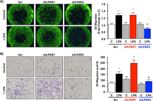 LPA-dependent migration signals via LPAR3 not LPAR1 in SKHep1 cells in vitro. (A)