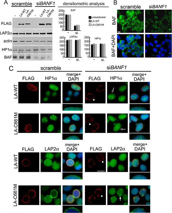 BAF depletion interferes with prelamin A-mediated HP1-alpha and LAP2-alpha nuclear relocalization.