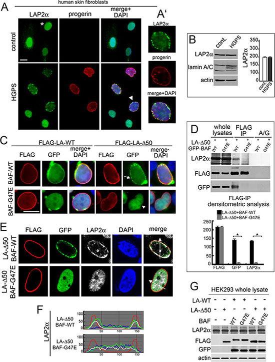 BAF is involved in the LAP2-alpha nuclear distribution observed in progerin expressing cells.