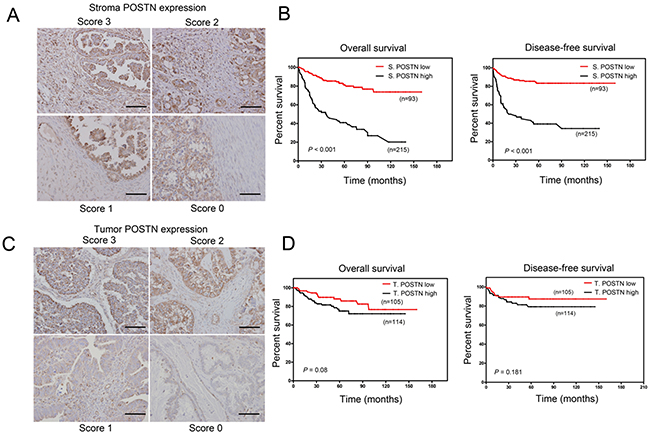 Overexpression of stromal POSTN predicts worse survival compared to tumor POSTN in EOC and borerline cancer patients.