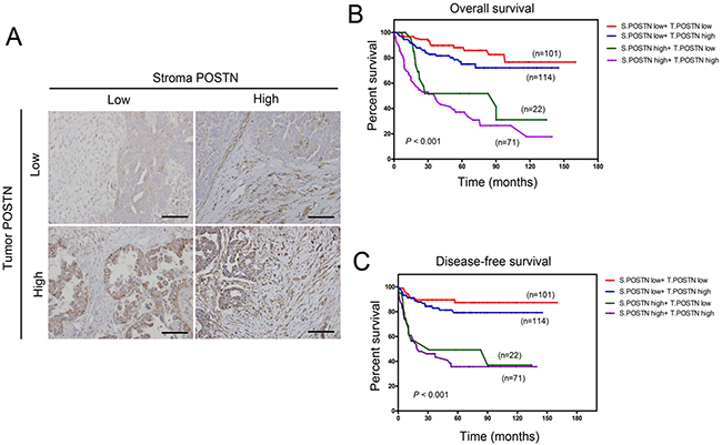 Overall and diseases-free survival analysis stratified by combination of stromal and tumor POSTN status.