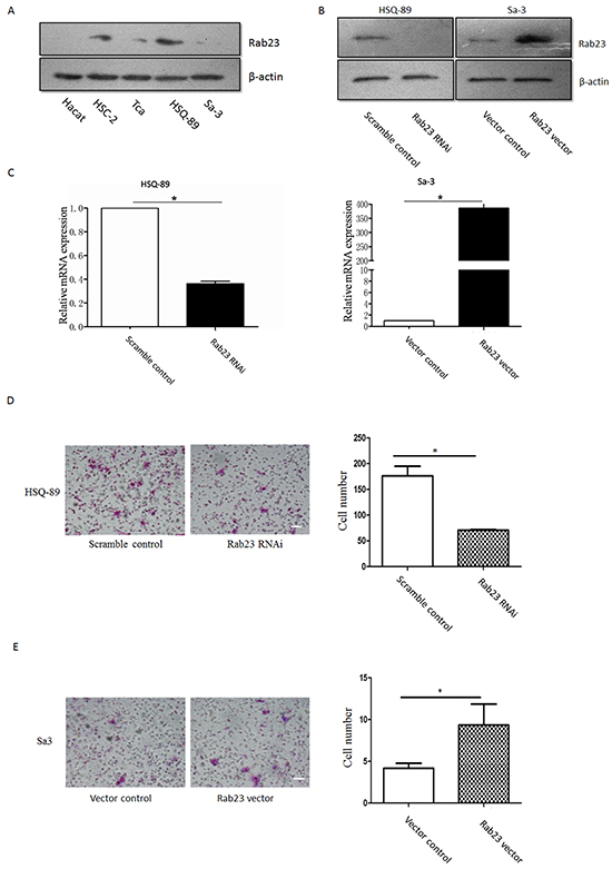 Rab23 promoted squamous cell carcinoma cells migration and invasion.