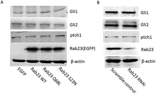 Rab23 didn't promote squamous cell carcinoma cells migration and invasion via Shh pathway.