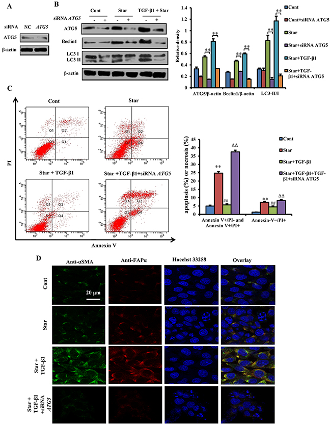 Atg5 knockdown blocked TGF-β1-induced protection and formation of CAFs phenotype in Star-treated NIH3T3 fibroblasts.